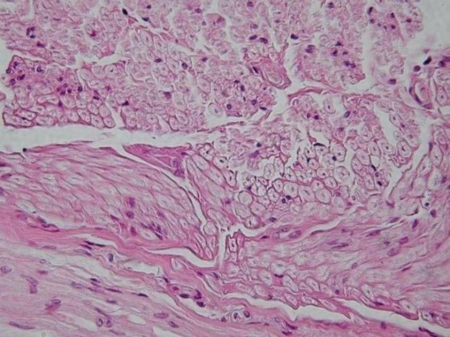 peripheral-nerve-cross-section.jpg